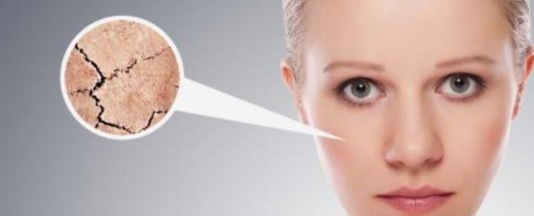 Masker Wajah Alami Untuk Kulit Kering dan Kusam 772x312 » Tips Membuat Masker Wajah Alami untuk Kulit Kering dan Kusam