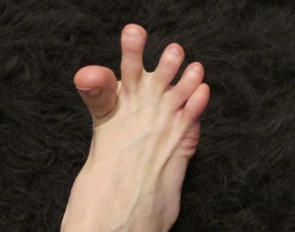 kram kaki 418x328 » 5 Penyakit yang Dapat Menyebabkan Anda Terkena Kram Kaki