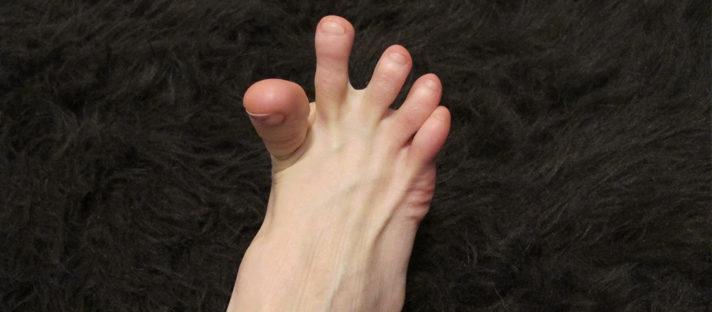 kram kaki 712x312 » 5 Penyakit yang Dapat Menyebabkan Anda Terkena Kram Kaki