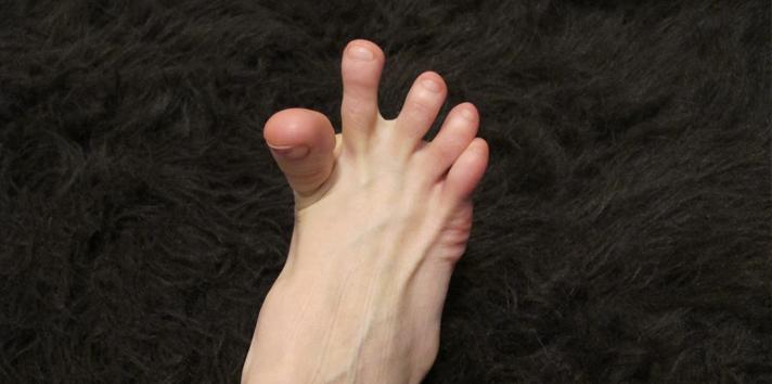 kram kaki » 5 Penyakit yang Dapat Menyebabkan Anda Terkena Kram Kaki
