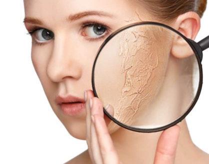 penyebab dan cara mudah mengatasi kerutan kulit wajah 418x328 » Ketahui Penyebab dan Cara Mencegah Kerutan pada Kulit Wajah
