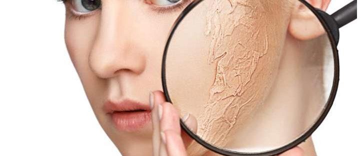 penyebab dan cara mudah mengatasi kerutan kulit wajah 728x312 » Ketahui Penyebab dan Cara Mencegah Kerutan pada Kulit Wajah