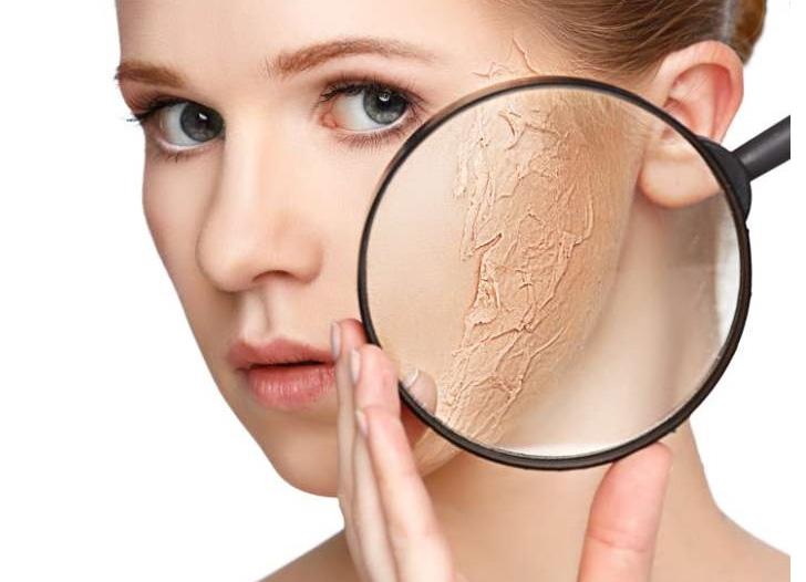 penyebab dan cara mudah mengatasi kerutan kulit wajah » Ketahui Penyebab dan Cara Mencegah Kerutan pada Kulit Wajah
