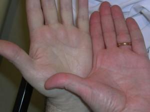 perbedaan anemia dan darah rendah » Ketahui Penyebab dan Cara Mengatasi Gejala Anemia